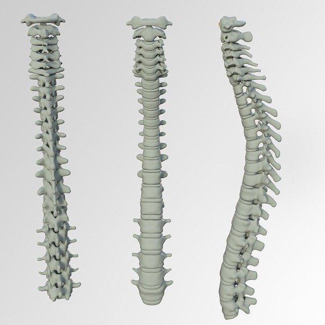 Cattiva postura: sintomi e trattamento
